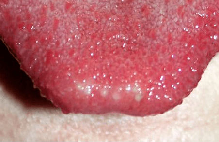 canker sores on tongue - Treat Panel
