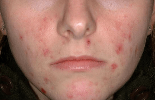 How To Get Rid Of Skin Tags Fast And Naturally