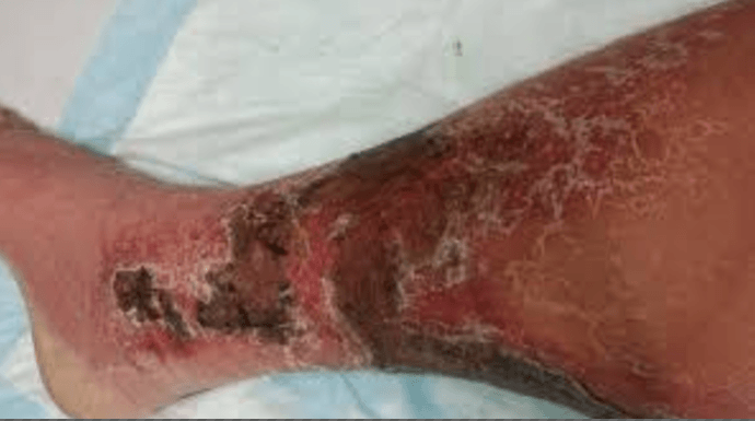 scab on leg - Treat Panel