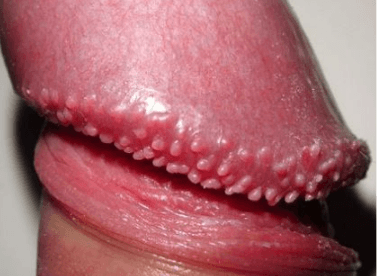How To Get Rid Of Bumps On Penis