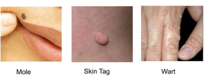 Picture of cancerous moles by the anus apologise
